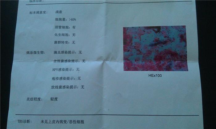 若菜光 MIBD-675